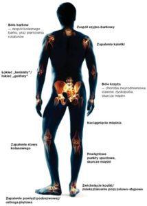 leczenie choroby zwyrodnieniowej